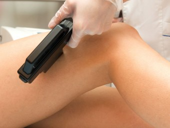laser-hair-removal-brisbane